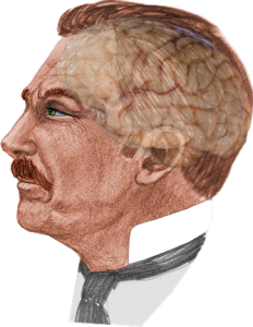 watson's brain2